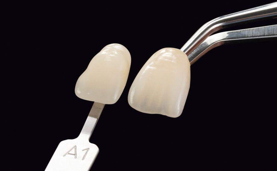 Fig. 2a-b Rappresentazione esemplare del controllo visivo della fedeltà cromatica di una corona campione VITA LUMEX AC rispetto allo standard di colore VITA ed esecuzione di una ricetta cromatica con polveri ceramiche arricchite di pigmenti.