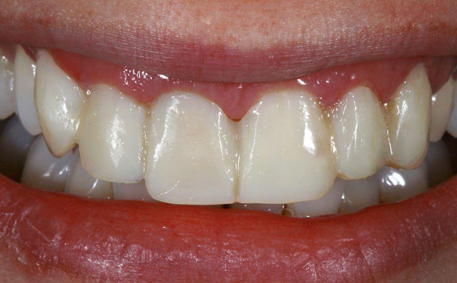 SITUAZIONE INIZIALE La riabilitazione provvisoria diretta è stata eseguita con una mascherina in silicone sulla base del mock-up.
