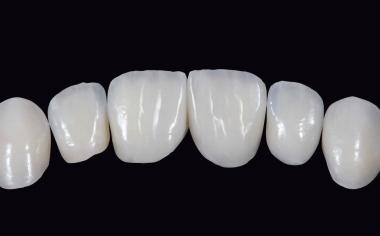 Fig. 8 Cromaticità e traslucenza sono equilibrate.