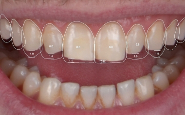 Fig. 3 Con una App è stato possibile modificare virtualmente le proporzioni dentali.