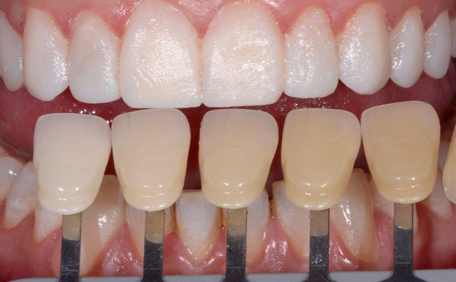 Fog. 6 La determinazione del colore dei denti è stata effettuata con VITA SYSTEM 3D-MASTER.