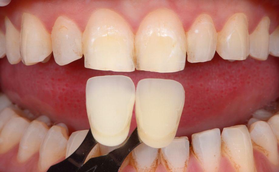 Fig. 7 Fotografie con filtri polarizzatori mostrano le nuance di colore.