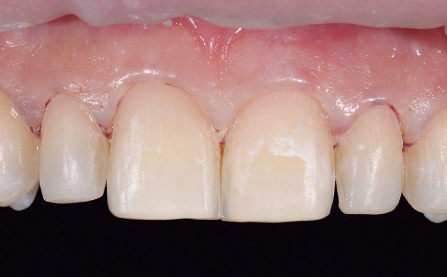 Fig. 9 Situazione clinica dopo asportazione minima di sostanza e leggero becco di flauto.