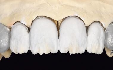 Fig. 12 La parte dentinale è stata stratificata in LUMINARY 1 (bianco) e DENTINE 1M1.