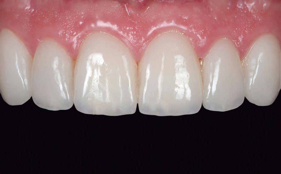 Fig. 15 Situazione clinica dopo sei settimane. Le papille sono perfettamente rigenerate.