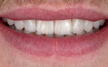 RISULTATO Il paziente è soddisfatto del suo nuovo sorriso. L'andamento delle labbra inferiori e del bordi incisali è in sintonia.