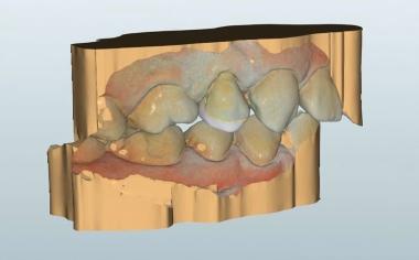 Fig. 5 Progettazione virtuale della riabilitazione coronale post-endodontiche terminata, vista da vestibolare.