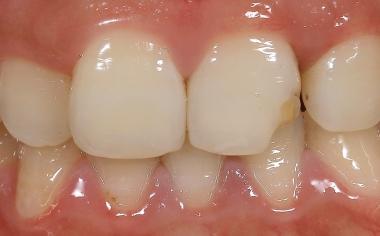SITUAZIONE INIZIALE La situazione iniziale con il dente 21 fratturato alla prima visita in studio.
