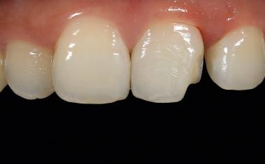 Fig. 4 La carie è stata eliminata in anestesia locale e le aree marginali nello smalto leggermente bisellate.