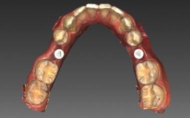 Fig. 3 La situazione intraorale dell'arcata inferiore sottoposta a scansione nel software InLab-CAD.