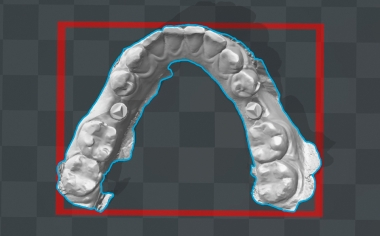 Fig. 4 Il modello virtuale dell'arcata inferiore è stato la base per la realizzazione additiva del modello di controllo.