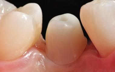 Fig. 9 E'stato possibile configurare in modo ottimale i bordi coronali sull'abutment in ceramica ibrida.