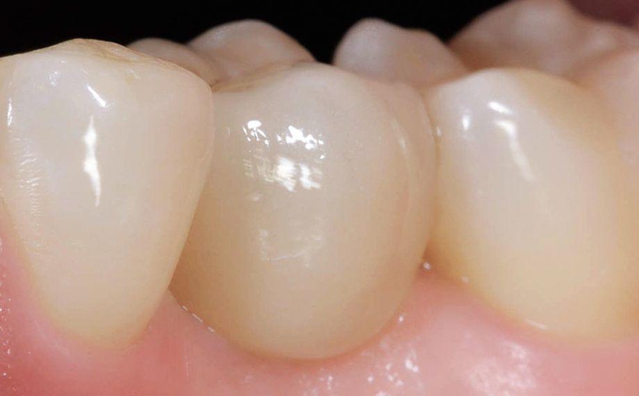 Fig. 10 Situazione in regione 34 immediatamente dopo l'integrazione adesiva della corona in ceramica feldspatica VITABLOCS TriLuxe forte.