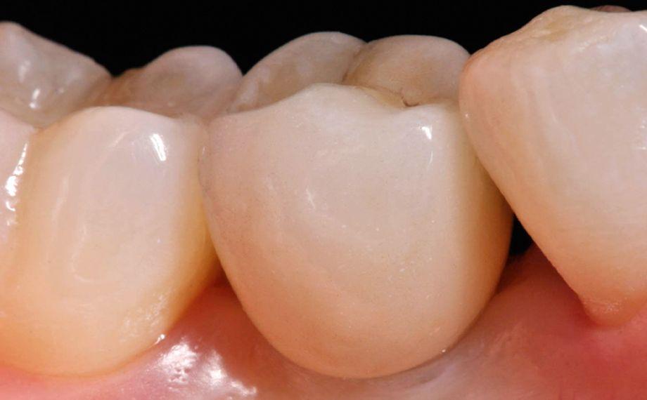 Fig. 11 Anche la corona in ceramica feldspatica in 35 ha un aspetto perfettamente naturale.