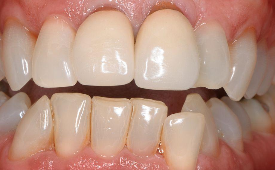 SITUAZIONE INIZIALE Inizialmente le corone in metallo-ceramica sui denti 11 e 21 presentavano deficit estetici.