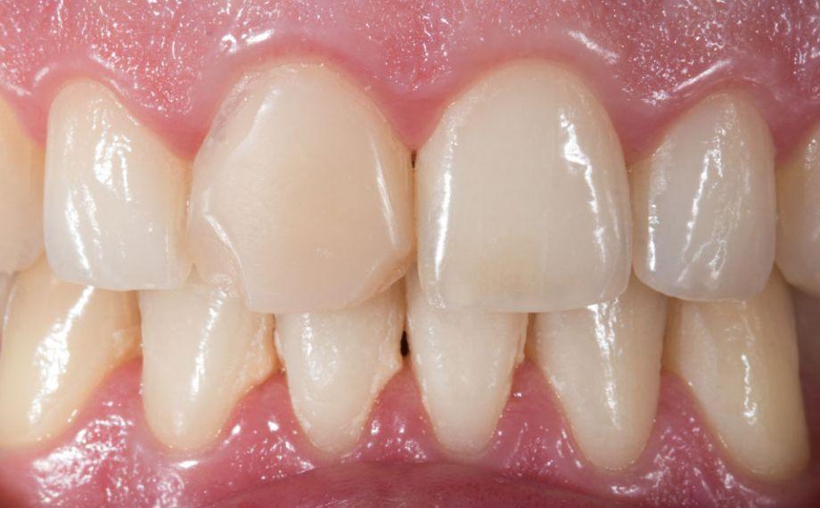 Abb. 1: Die insuffiziente, frakturierte Kompositfüllung an Zahn 11 sollte mit einer CAD/CAM-gestützt gefertigten Feldspatkeramikkrone versorgt werden.