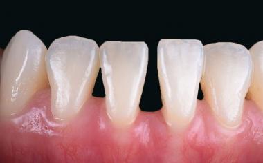 Abb. 1: Die Ausgangssituation mit einem ausgeprägten Diastema zwischen den beiden mittleren Unterkieferfrontzähnen.