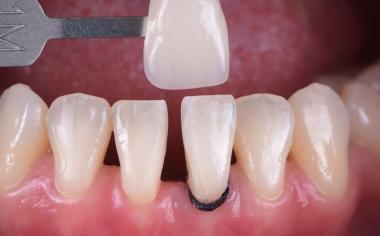 Abb. 2: Die Zahnfarbbestimmung mit dem VITA Toothguide 3D-MASTER deckte den Zahnfarbraum ab und machte eine geeignete Blockauswahl möglich.