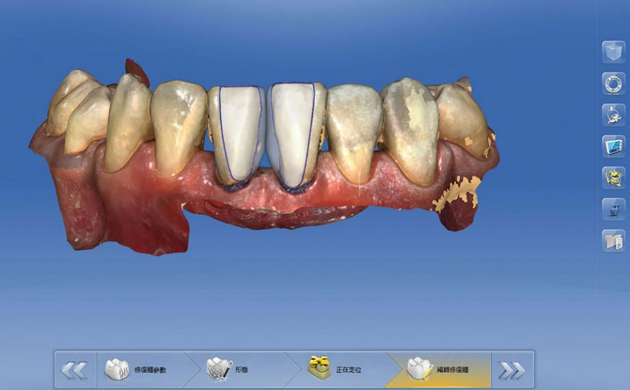 Abb. 4: Die Konstruktion der Non-Prep-Veneers in der Software CEREC Premium 4.5.1.