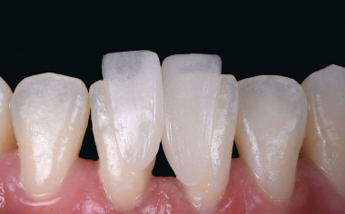 Abb. 6: Bei der klinischen Einprobe zeigte sich schon der ausgeprägte Chamäleoneffekt des hybridkeramischen Materials.