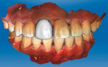Abb. 4: Für die Konstruktion wurde die ursprüngliche Morphologie von Zahn 11 kopiert.