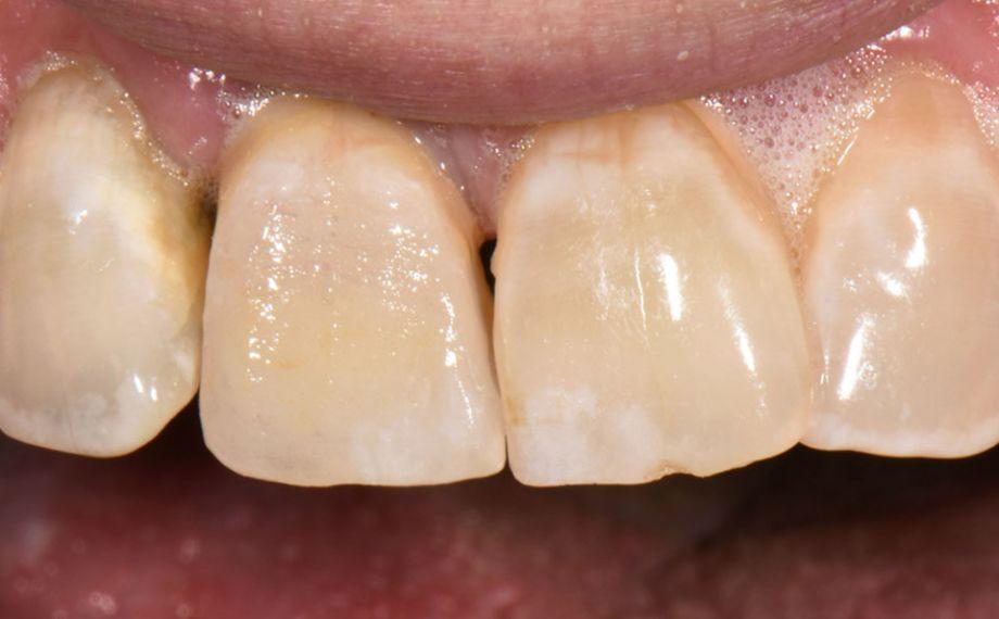 Abb. 5: Die charakterisierte und ausgearbeitete Krone bei der klinischen Einprobe.