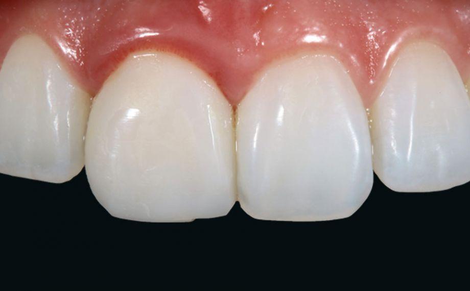 Abb. 2: Die Krone an Zahn 11 zeigte sich leblos, ohne lichtoptische Effekte.