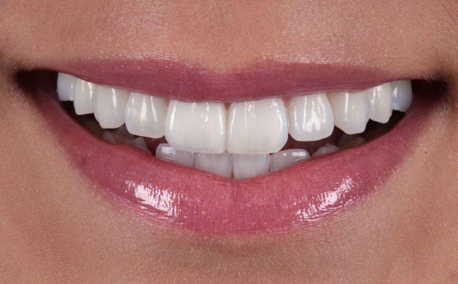 Abb. 10: Der Zahnbogen in der ästhetischen Zone harmonierte mit dem Lippenverlauf.