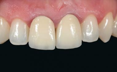 Abb. 1: In der Ausgangssituation zeigten die metallkeramischen Kronen an den Zähnen 11 und 21 ästhetische Defizite.