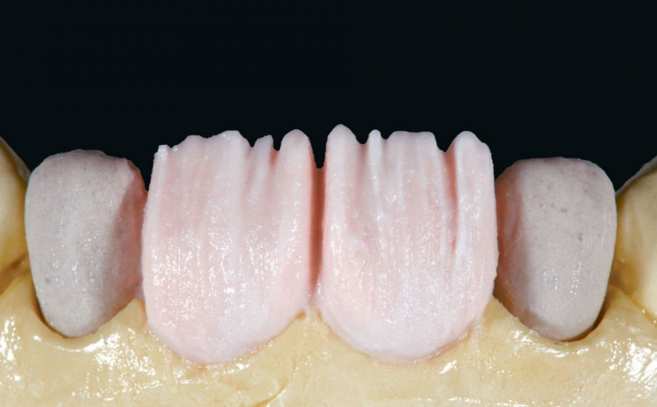 Abb. 9: Der Dentinkern wurde anatomisch reduziert mit DENTINE A1 geschichtet.
