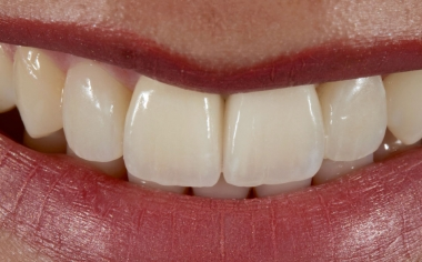 Abb. 13: Die symmetrischen Schneidekanten harmonierten mit dem Lippenverlauf.