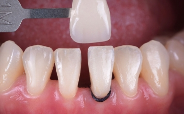 Fig. 2: The tooth shade determination with the VITA Toothguide 3D-MASTER covered the tooth shade range and made it possible to select a suitable block.