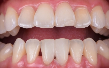 Fig. 7: The two microveneers blended invisibly into the natural row of teeth.
