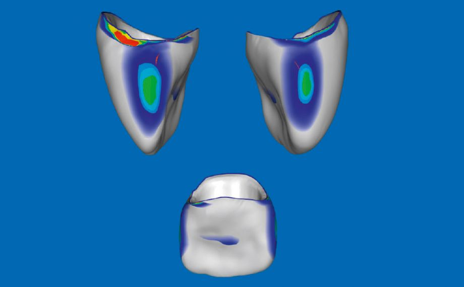 Fig. 5: In the CEREC Premium 4.4.4 software, the occlusal and proximal contact point areas could be modified.