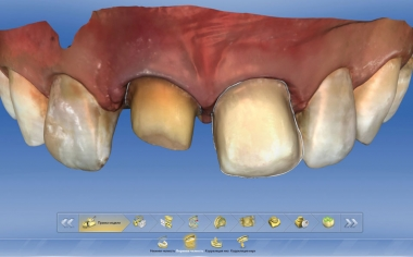 Fig. 4: The preparation margins were defined at 11 and 21 in the CEREC software.