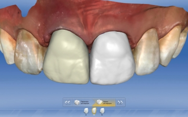Fig. 5: A full crown made from VITA SUPRINITY PC was constructed on tooth 11 and a veneer of VITABLOCS Mark II on tooth 21.