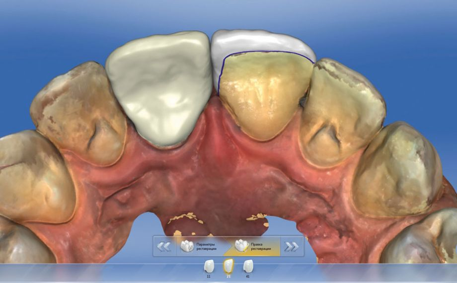 Fig. 6: The palatal closure of the veneer restoration can be virtually viewed from the dorsal side.