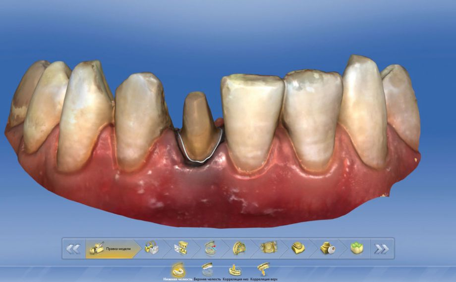Fig. 7: The preparation margin was also determined digitally on the full crown preparation on tooth 41.
