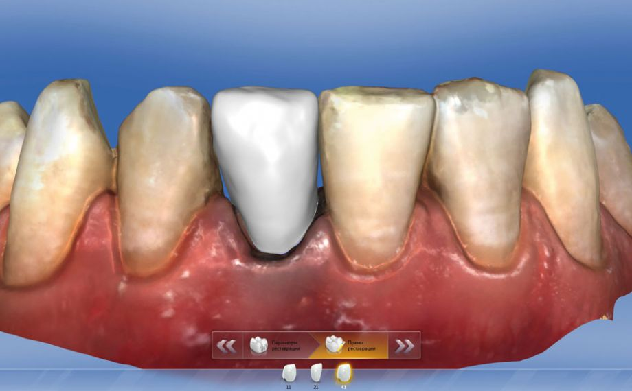 Fig. 8: The designed monolithic crown was fabricated from the zirconia-reinforced glass ceramic 0M1 VITA SUPRINITY PC.