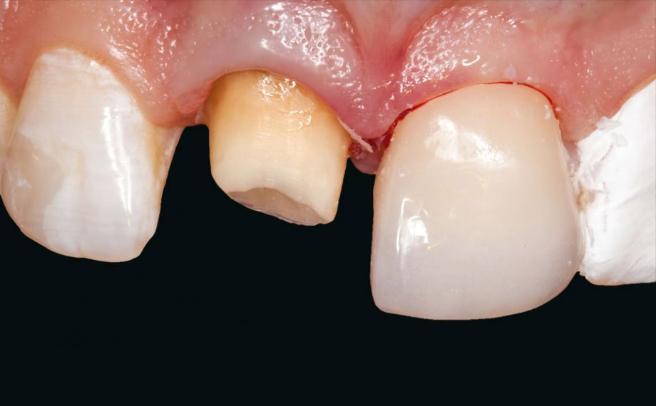 Fig. 9: The individualized veneer made of VITABLOCS Mark II was incorporated as the first fully adhesive restoration after preconditioning.