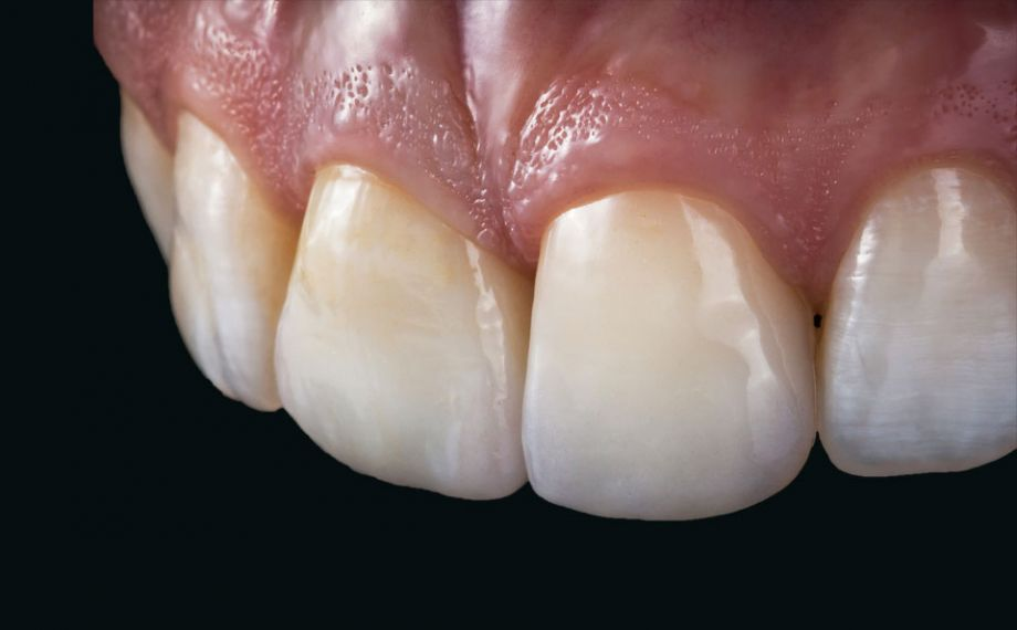 Fig. 14: The different choice of material for the upper middle incisors results in a highly esthetic result with a natural play of shade and light.