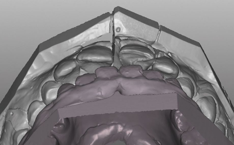 Case study 1Fig. 7: The enamel-like abrasion made long-lasting and functional anterior guidance via tooth 21 possible.