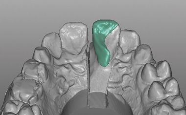 Case study 1Fig. 9: The defect-oriented construction of the palatal hybrid-ceramic restoration.
