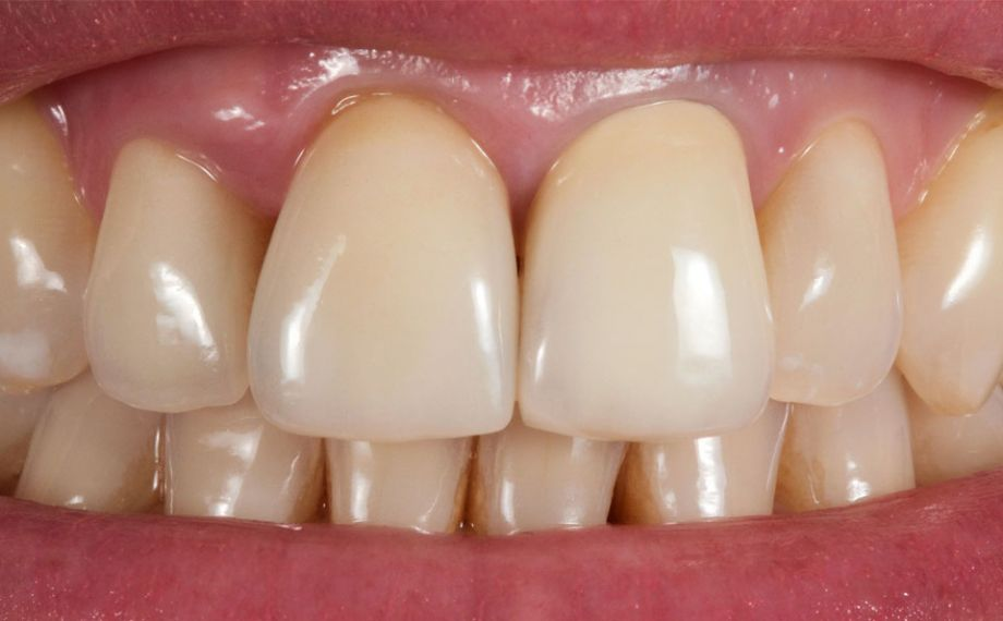 Fig. 1: The initial situation with lifeless, metal-ceramic crowns in the esthetic zone.