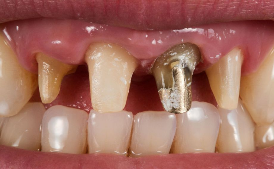 Fig. 2: Full crown preparation for the new, all-ceramic crowns.