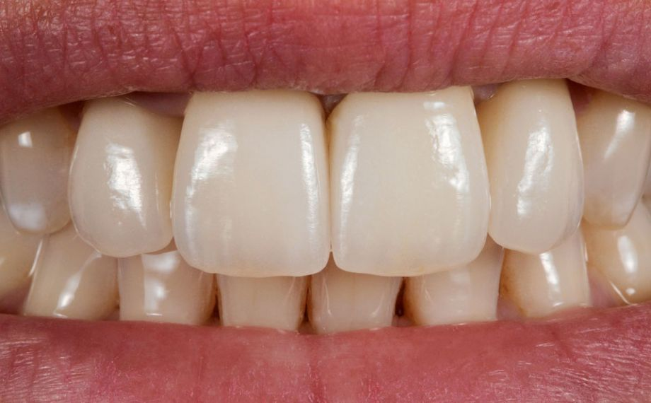 Fig. 6: The final esthetic results after the self-adhesive fixation of the crowns.