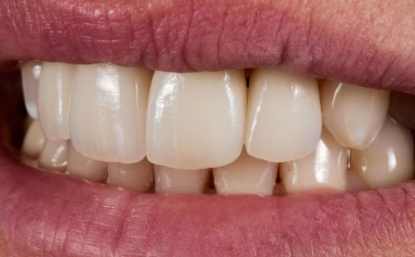 Fig. 7: The harmonious integration of the all-ceramic crowns.