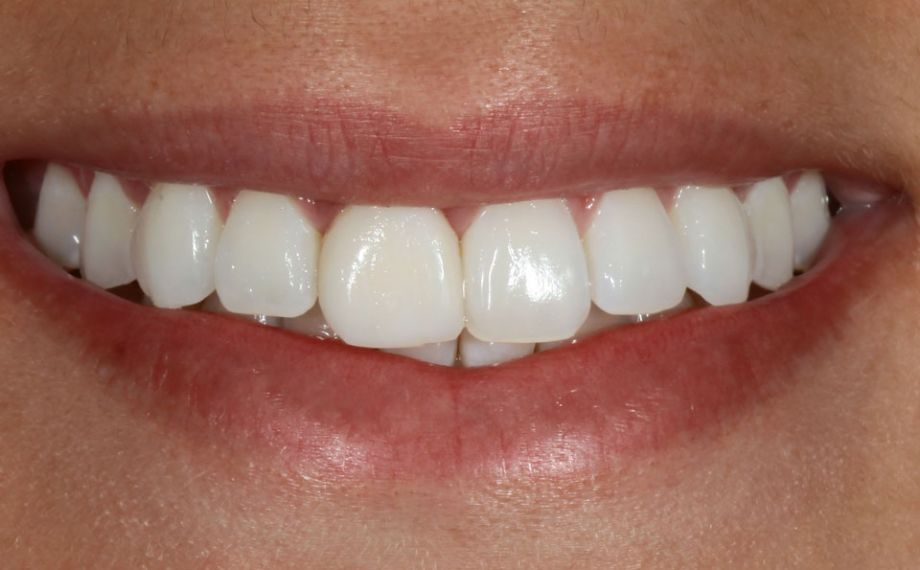 Fig. 1: The initial situation with morphological deficits and asymmetries in the esthetic zone.