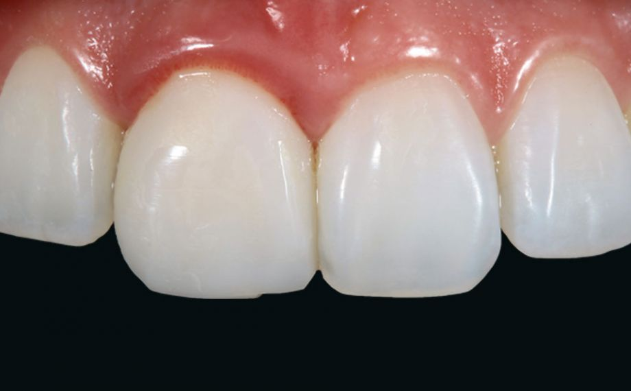 Fig. 2: The crown on tooth 11 was lifeless, showing no photo-optical effects.