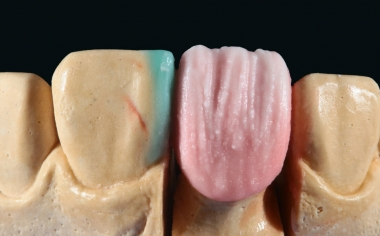 Fig. 6: After the anatomical cut-back, EFFECT CHROMA 2 (sand beige) was applied to the incisal area.